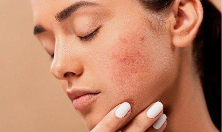 Introducción a la dermatología estética